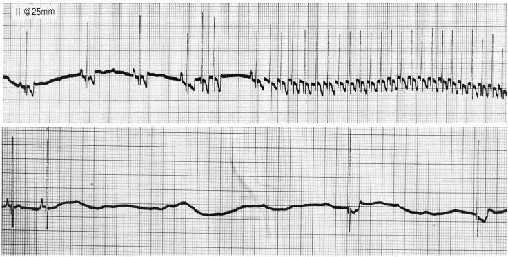ekg strip of sick sinus syndrome