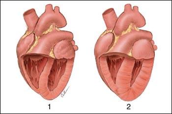 herz gefaesse kardiologe spezialisten